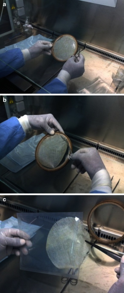 a Amniotic membrane stretched over sterile gauze and tightened into sterilized dual circular wooden frame. b, c Amniotic membrane graft cutting, trimming and packaging in inner polyethylene packs