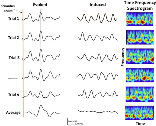 The difference between evoked and induced M/EEG responses. The AEF on the left is the linear average of many short trials whose responses are phase-locked to the onset of a stimulus. For induced responses (middle traces), linear averaging will remove the effect of interest due to variable phase relationship between trials. The information within induced responses is obtained by evaluating the frequency spectrum of each trial (right panels) over time, which is then averaged. The frequency information of individual trials is thus retained (bottom right panel).
