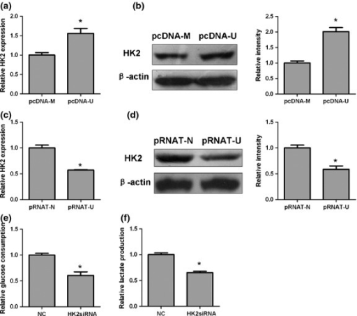 Long non-coding RNA UCA1 regulates glycolysis through hexokinase 2 (HK2) in stable bladder cancer cells. (a, c) Quantitative PCR analysis of HK2 mRNA levels in UMUC-2 cells transfected with pcDNA3.1/UCA1 (pcDNA-U) or pcDNA3.1/Mock (pcDNA-M) plasmids and 5637 cells transfected with pRNAT-U6.1/Neo-shUCA (pRNAT-U) and pRNAT-U6.1/Neo-Nc (pRNAT-N) plasmids. (a) Overexpression of UCA1. (c) Knockdown of UCA1. (b, d) Western blot analysis of HK2 protein level in stable cell lines with overexpression of UCA1 (b) or knockdown of UCA1 (d). (e, f) Glucose consumption (e) and lactate production (f) analysis in pcDNA-U cells transfected with HK2 siRNA or negative control (NC). The average values ± SD of three separate experiments were plotted. *P < 0.05.