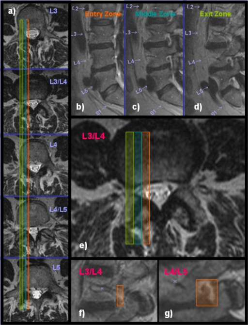 Preoperative MRI scans of a 64 year old female: a) panel on the left shows axial MRI cuts from L3 to L5, b-d) panel shows sagittal MRI cuts through the entry (shaded orange), middle (shaded turquoise), and exit zone (shaded green) of the lumbar neuroforamina, e) axial MRI cut through the L3-4 disc space showing the stenotic lesion in the exit zone at that level, f-g) sagittal MRI cuts through the exit zone at L3-4, and the L4-5 level. The neuroforaminal height (orange shade area) is less than 3 mm and hence consistent with spinal stenosis. At L4-5, the neuroforaminal height is 5 mm (orange shade area).