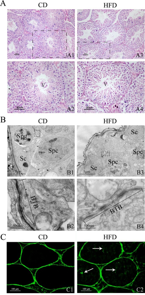 Effects of HFD on mouse testicular morphology and BTB integrity.Hematoxylin and eosin-stained testicular sections from mice fed CD (A1) and HFD (A3). Scale bars = 50 μm. (A2), (A4) Enlarged views of indicated sections in (A1) and (A3); the sections of seminiferous tubules are both in spermatogenic stage V. Scale bars = 50 μm. (B) Transmission electron micrograph of seminiferous epithelium of mice fed CD (B1) and HFD (B3). Sc, Sertoli cell; Spg, spermatogonium; Spc, primary spermatocyte. Scale bars = 5 μm. (B2), (B4) Magnified views of indicated sections in (B1) and (B3). Straight lines show BTB between two adjacent Sertoli cells constituted by cellular tight junctions. Scale bars = 500 nm. (C1) In the sections of testes from CD mice, the FITC green fluorescence is only observed in the interstitial spaces and basal compartment. (C2) In the sections of testes from HFD mice, besides the interstitial space and basal compartment, the FITC green fluorescence is also viewed in the lumen of seminiferous tubules (arrows). Scale bars = 100 μm.