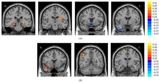 Regional oscillations and associative memory correlation analyses. (A) Statistical map for the correlations between performance on the PALT and ALFF in the bilateral PHG (a, b), left insula (c), right IFG (d), and right ITG (e). (B) Statistical map for the correlations between performance on the PALT and fractional ALFF in the right PHG/STG (f), right IPL (g), and right SMA/SFG (h). The correlation values are indicated using the color scales on the right.