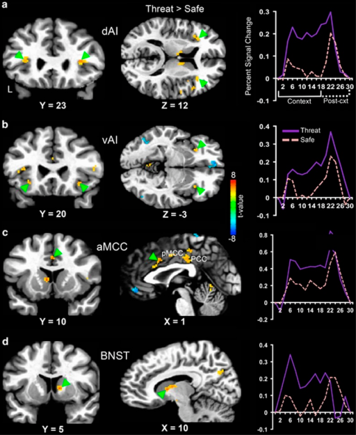 Adult nonclinical subjects exhibited increased hemodynamic activity in (a and b) the dorsal (dAI) and ventral (vAI) regions of anterior insula, (c) anterior midcingulate cortex (aMCC) and (d) the bed nucleus of the stria terminalis (BNST; indicated by green triangles) during anticipation of unpredictable threat (threat > safe). To the right are plots depicting the peristimulus time courses of the hemodynamic response in each region. Following a brief delay in the hemodynamic response to context onset, all the four regions showed greater sustained activation during the threat context compared with the safe context. All the results shown were corrected for multiple comparisons at Pcorr<0.01. L, left; PCC, posterior cingulate cortex; pMCC, posterior midcingulate cortex.