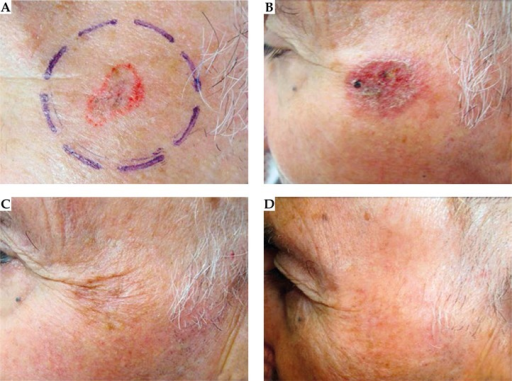 A) Superficial basal cell carcinoma located on the cheek prior to treatment. B) Two weeks after last EBT fraction. C) Three months after last EBT fraction. D) Six months after last EBT fraction