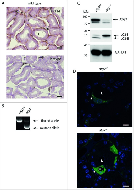 Characterization of autophagy-deficient atg7−/− HaGls. (A) KRT14 expression in myoepithelial cells of the HaGl visualized by immunohistochemistry against KRT14 in young mice (3-wk-old). These basal layer cells in the ducts are formed by myoepithelial cells, which are mitotically active. Ductal cells with large and round nuclei form the inner surface of the ductal lumen. The lumen is partially filled with an amorphous substance from these secretory cells. Myoepithelial cell (→), secretory cell (*), ductal lumen (L). Size bar = 20 μm. (B) Genotyping PCR showing loss of floxed allele in HaGls of Atg7f/fKrt14-cre (atg7−/−) mice. (C) Immunoblot for ATG7, LC3 and GAPDH on Atg7f/f and atg7−/− HaGl tissue homogenates showing almost complete absence of ATG7 (upper band, lower band represents unspecific signal) and of the processed LC3-II form of LC3-I. The lack of the LC3-II band in atg7−/− samples demonstrates abrogation of autophagy. Note: The presence of residual ATG7 protein likely results from other cell types present in the HaGl, such as blood cells. (D) Sections of GFP-LC3 transgenic Atg7f/f and atg7−/− mice showing the presence of a discrete number of ductal cells that display GFP puncta reminiscent of autophagosomes in Atg7f/f. Note: The cell in the center of the Atg7f/f section is binucleated, a feature of the HaGl. In contrast, and in agreement with the increase in LC3-I in the atg7−/− background, GFP-LC3 is diffusely distributed and accumulates in these samples, indicative of free form of GFP-LC3 not incorporated into autophagic vesicles. Note: a few GFP spots can still be detected in atg7−/− cells possibly resulting from GFP aggregates. *, vacuoles completely excluding GFP; arrow, small spots also excluding GFP found in both genotypes; L, ductal lumen. Nuclei were visualized with Hoechst. Size bar = 10 μm.