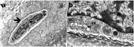 TEM evaluation of Group B (a) Osteocyte (arrow; N refers to nucleus; at 21K×); (b) Granular endoplasmic reticulum (ER), mitochondria (M), golgi complex (GC; at 83K×).