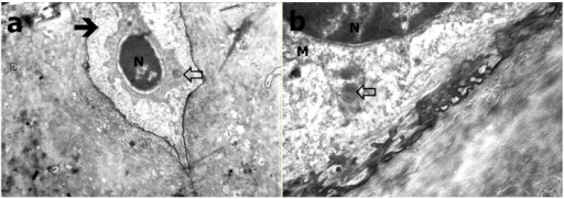 TEM evaluation of Group A (a) Heterochromatic osteocyte (black arrow), decreased and condensed cytoplasm with round appearances (white arrow; at 26K×); (b) Round appearances within cytoplasm (white arrow), mitochondria (M) and nucleus (N; at 56K×).