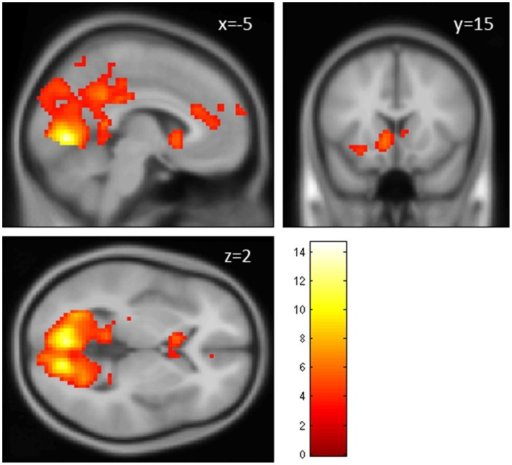 Main effect of perceiving a Fair Trade emblem in conjunction with a food product vs. no emblem. Activity increased in the ventral striatum, anterior cingulate cortex and occipital lobe at the time of evaluation (i.e., stimulus onset), displayed at p < 0.001, uncorrected, on the mean 1.5T structural SPM template. Color bars indicate T-values.