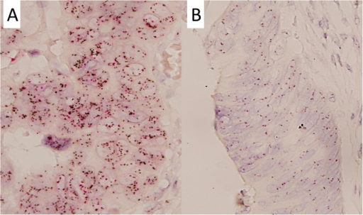 Representative figures of c-MYC status detected by dual-color silver in situ hybridization (A and B) in colorectal cancer patients.(A) c-MYC gene copy number gain (60 × magnification); (B) c-MYC gene disomy (60 × magnification).