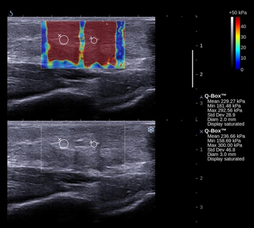 Conventional ultrasound and SWE images of surgically repaired Achilles tendon at 24 weeks postoperatively. The boxes are the regions of interest for quantitative measurement.