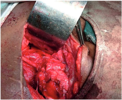 Intraoperative photo–completion of procedure.
