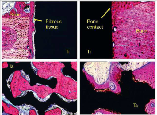 Comparison of bone-integrative properties. Non-coated (left) and biomimetically coated by calcium orthophosphates metal implants (right) after implantation in the femur of goats for 6 weeks. Reprinted from Layrolle (2011) with permission.