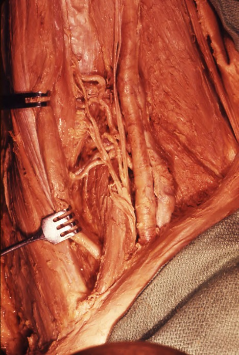 femoral triangle (of Scarpa); inguinal ligament; adductor longus muscle; sartorius muscle