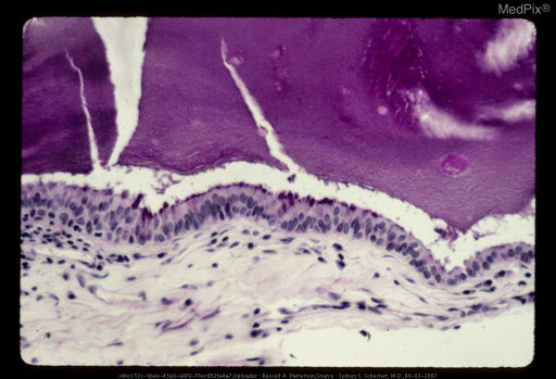 Photomicrograph of colloid cyst showing amorphous eosinophilic cyst contents (above) and epithelial lining (horizontal).  The lining is low-columnar and has cilia - resembling respiratory epithelium.