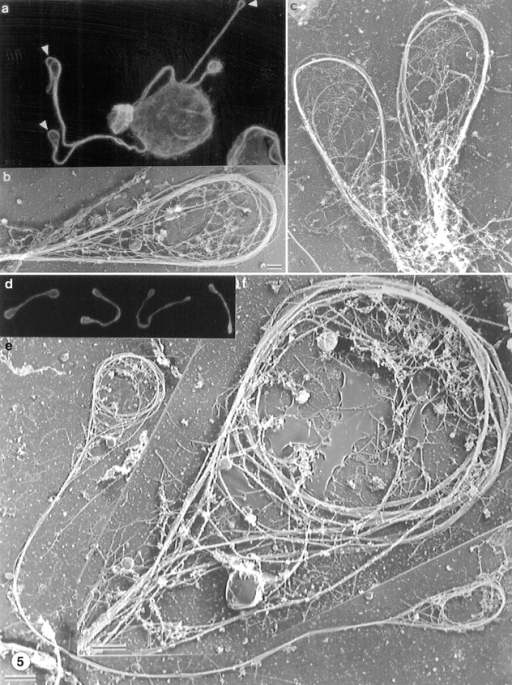Organization of microtubules at the ends of proplatelet extensions (a–c) and in released proplatelet forms (d–g). (a) Antitubulin staining of a megakaryocyte and its early proplatelet extension. Microtubules concentrate along the edges of the megakaryocyte and enter into the proplatelet extensions. Bundles enter the projections from both sides and separate periodically within the extensions. The distal end of each proplatelet has a teardrop-shaped enlargement that contains a microtubule loop (arrowheads). (b and c) Representative electron micrographs showing the organization of microtubules within the tips of proplatelet termini. The end of each proplatelet contains a microtubule bundle that loops beneath the plasma membrane and reenters the shaft to form a teardrop-shaped structure. (d) Gallery of released platelet forms stained for tubulin by immunofluorescence confocal microscopy. Released platelet-sized particles are connected by thin cytoplasmic bridges, the most abundant being barbell shapes composed of two platelet-like particles connected by a single cytoplasmic strand. Microtubules line the shaft and rim the bulbous ends. (e) Low magnification electron micrograph showing the microtubule-based cytoskeleton of a representative released proplatelet form. A microtubule bundle lines the shaft of the proplatelet. Bar, 2 μm. (f) Higher magnification electron micrograph of one end of the proplatelet shown in e. Ends have microtubule bundles arranged into teardrop-shaped loops, similar to those at the ends of proplatelets extending from megakaryocytes. Within these loops are microtubule coils structurally similar to those observed in mature platelets isolated from the blood. Bar, 0.5 μm.