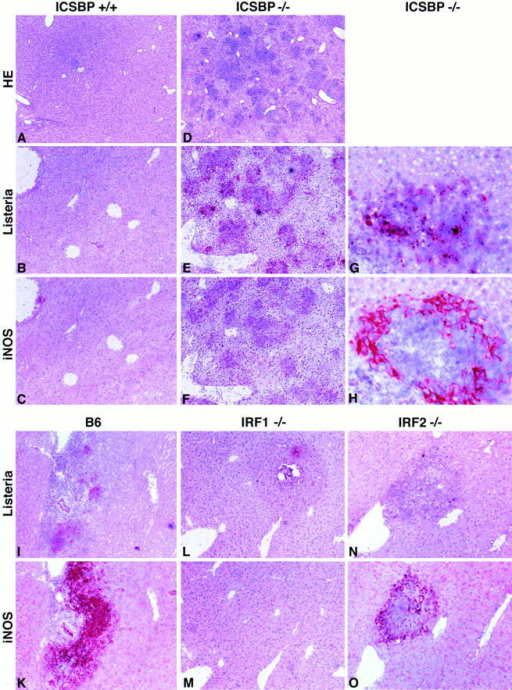 Listeria replication and iNOS expression in the liver after infection with Listeria. ICSBP−/− (D–H), IRF1−/− (L, M), IRF2−/− (N, O), and  control mice (A–C, I, K) were infected with 5 × 103 CFU of Listeria. After 5 or 6 d liver and spleen were taken out. Conventional HE staining (A, D)  and immunohistology for Listeria (B, E, G, I, L, N) and iNOS (C, F, H, K, M, O) was performed using polyclonal primary antibodies. Magnifications:  (A, D), ×35, (B, C, E, F, I–O), ×60 (G, H), ×220.