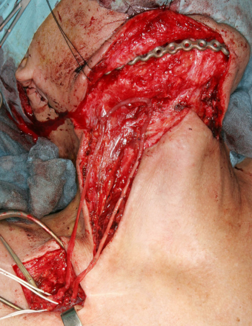 Surgical approach to the subclavian vessels. The saphena magna vein is end-to-side anastomosed to the subclavian vessels. The length of the vessel loop matches the length of the free flap's pedicle.