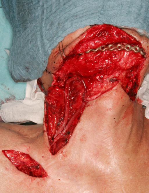 Arteriovenous loop pulled through the supraclavicular skin bridge and fixed in the desired region.