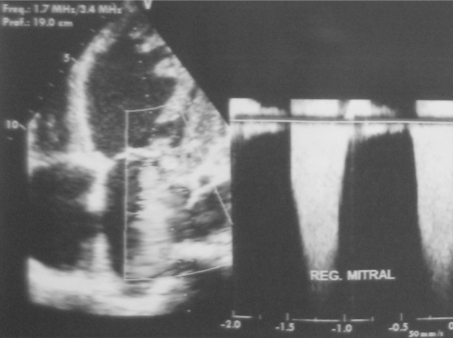 Transthoracic echocardiography showing severe mitral regurgitation