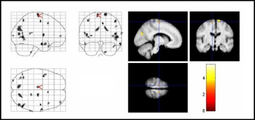 Areas with negative correlation between MTR maps and YGTSS score in TS patients. Areas with negative correlation between MTR maps and YGTSS score in TS patients. The same conventions apply as for figure 4. Significant voxels for MTR map reductions with higher YGTSS scores were found in right anterior cingulate gyrus, parietal-temporal-occipital association cortex, and superior frontal gyrus bilaterally (corrected P < .05). Note that changes in temporal areas, which were not significant according to our hypothesis, are also displayed. MTR = magnetization transfer ratio, YGTSS = Yale global tic severity scale, TS = Tourette syndrome.