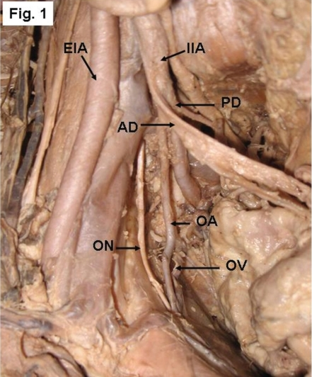 Right side of a pelvis showing the origin of the obtura | Open-i