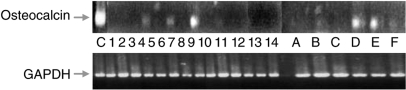 RT–PCR performed with osteocalcin-specific (upper panel) and GAPDH-specific (lower panel) primers on cDNAs obtained from 14 patients affected by metastatic osteosarcoma and six healthy haemopoietic stem cell donors. C: MG63 osteosarcoma cell line; 1–14: patient cDNAs; A–F: stem cell donors cDNAs. This and all the following experiments were done at least three times.