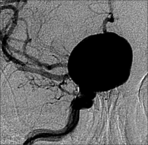 Presence of a giant aneurysm from the supraclinoid tract of the right carotid siphon, digital subtraction angiogram in anterior-posterior craniocervical view