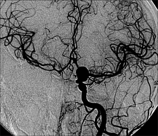 Right intracerebral vascularization vicariated by the left circulation, digital subtraction angiogram after first intervention