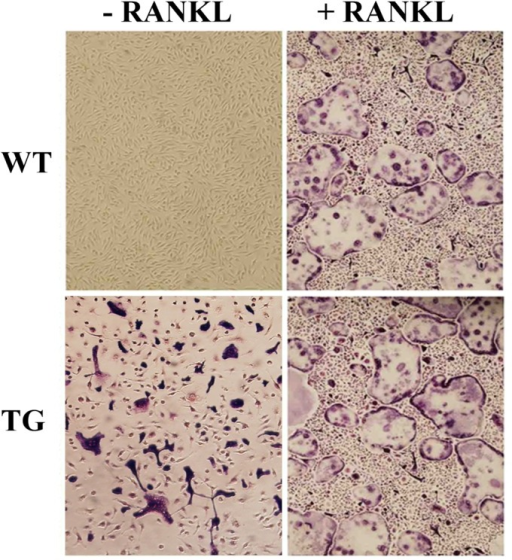 Bone marrow macrophages derived from IKK2SSEEMYELO -tg mice generate RANKL-independent osteoclasts.Marrow macrophages were isolated from wild type and IKK2SSEEMYELO -tg mice and cultured with M-CSF in the absence or presence of RANKL (50 ng/ml). Cultures were fixed on day 5 of culture and stained with TRAP. Purple/red cells are TRAP-positive bona fide osteoclasts which are capable of resorbing bone (data not shown). Number of osteoclasts per well (Average of 4 wells from 5 different experiments (+/−SE): WT+RANKL 215+/−32; TG 105+/−17; TG+RANKL 248+/−41.