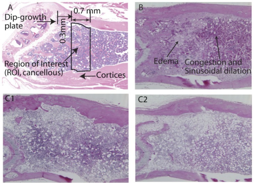 Schematic representation of bone and marrow.A. region of interest in sagittal view of a normal control mouse. B. Sagittal section of bone marrow from an intact mouse 8 days post-irradiation. Note the areas of congestion and sinusoidal dilation characterized by increased density of red blood cell within the expanded vascular spaces; also present are areas of edema characterized by increased volume of pale pink fluid in the interstitial spaces. C. Sagittal sections of bone marrow 30 days after irradiation in intact (C1) and OVX (C2) mice. Note the more intensely purple areas indicative of higher hematopoietic activity in C1 compared with C2, as well as expanded adipose in C2 compared with C1.