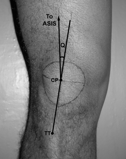 Measurement of the Q angle. ASIS – anterior superior | Open-i