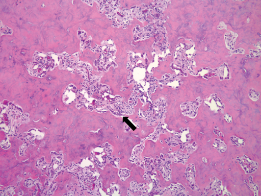 Hematoxylin and eosin (H&E) stained slide at 200× magnification shows a bone-forming neoplasm with immature bone (arrow) and spindle cell population with rich vasculature.