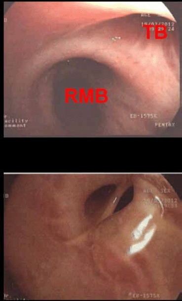 Bronchoscopy The bronchoscopic image (Fig 2a) shows the origin of the tracheal bronchus (TB) nearly at the bifurcation. The proximal right main bronchus (RMB) is also visible. A view into the tracheal bronchus is provided by figure 2b. The orifice seems to be partially narrowed.