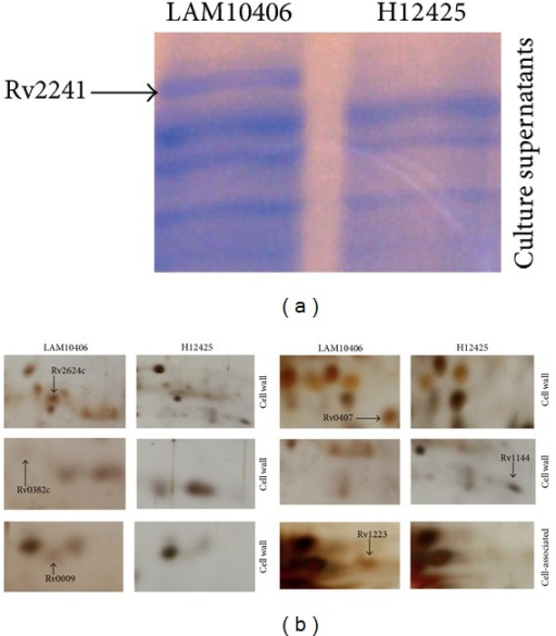 Proteomics to identify differential proteins between LAM10406 and H12425 M. tuberculosis strains. (a) Equal amounts of proteins from culture supernatants of Mtb LAM10406 and H12425 were resolved on 1D 12% polyacrylamide gels, which were stained with colloidal Coomassie. The identified differential protein is indicated with the arrow. (b) Differential proteins identified by 2D gel electrophoresis. The first-dimension isoelectric focusing used a pH range of 4–7. The second-dimension SDS-PAGE was on 12% polyacrylamide gels, which were silver stained. Differential proteins present in the cell wall and cell-associated fractions of the Mtb LAM10406 and H12425 strains are indicated.