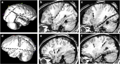 (a) Three-dimensional visualization of the right hemispheric subdural electrode arrangement. (b) Sagittal MRI view of the anterior and posterior insular electrodes on the right side. (c) Sagittal MRI view of the hippocampal electrode on the right side. (d) Three-dimensional visualization of the left hemispheric subdural electrode arrangement. (e) Sagittal MRI view of the anterior and posterior insular electrodes on the left side. (f) Sagittal MRI view of the hippocampal electrode on the left side.