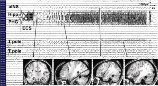 Stimulation of the right hippocampus at 1 mA generated orgasmic ecstasy while triggering a 45-second seizure discharge over the right hippocampus (Hipp), the parahippocampal gyrus (PHG), the temporal pole (T pole), and the anterior insula (aINS).