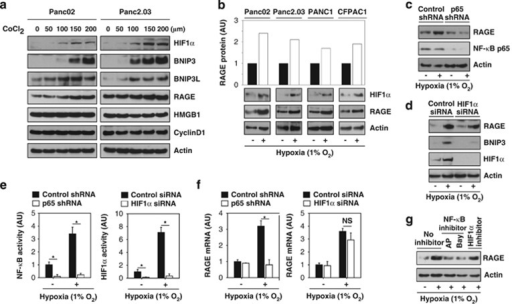 Hypoxia increases RAGE expression in an NF-κB-dependent and HIF1α-independent manner in pancreatic tumor cells. (a and b) Indicated pancreatic tumor cell lines were treated with CoCl2 (a) or 1% O2 (b) for 24 h. Western blot analyzed expression of RAGE, HIF1α, and other indicated proteins. (c and d) Panc02 cells were transfected with control shRNA (c) p65 shRNA (c) control siRNA (d) and HIF1α siRNA (d) for 48 h, and then treated with 1% O2 for 24 h. The indicated protein levels were analyzed by western blot. (e and f) In parallel, the transcriptional activity of NF-κB and HIF1α (e) and RAGE mRNA level (f) were assayed (n=3, *P<0.05). (g) Panc02 cells were treated with 1% O2 with or without NF-κB inhibitor (ammonium pyrrolidinedithiocarbamate (AP, 100 μM)) and Bay 11–7082 (Bay, 10 μM) and HIF1α inhibitor (methyl 3-((2-(4-(2-adamantyl)phenoxy)acetyl)amino)-4-hydroxybenzoate, 10 μM) for 24 h. The protein level of RAGE was analyzed by western blot. AU=arbitrary unit