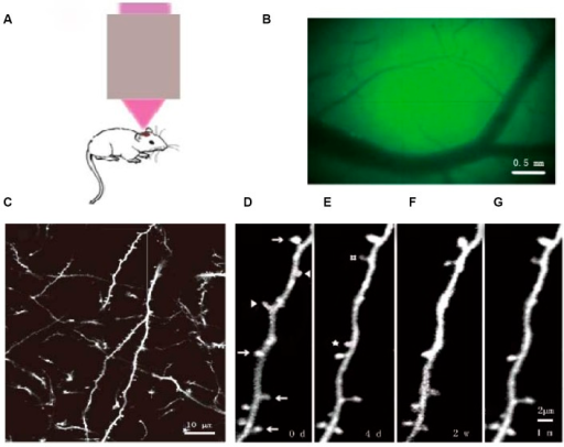 Dendritic spines of YFP mice longitudinally observed by two-photon microscopy.(A) Schematic of the imaging of the cortex using the two-photon carrier. (B) Locating the observation site by viewing vasculature under the thinned skull. (C) In vivo imaging the primary sensory cortex at 25× magnification, the dendritic spines and axons appear clearly. (D–G) Magnified images of (C) at (D) day 0 and (E) day 4, at (F) two weeks, and at (G) one month. Arrows: dendritic spines observed at the indicated four time points. Arrowheads: dendritic spines that disappeared on the fourth day. #: dendritic spines that were newly formed by the fourth day and remained at two weeks and one month. ☆: dendritic spines that were newly formed by the fourth day, but disappeared at two weeks. Scale bars: 0.5mm(B),10 μm (C), 2 μm (D, E, F, G).