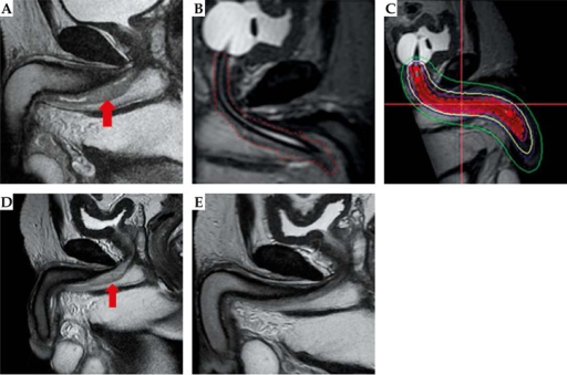 T2 weighted sagittal MRI images at diagnosis (A), brachytherapy planning (B, C), boost (D), and at the time of last follow up (E)