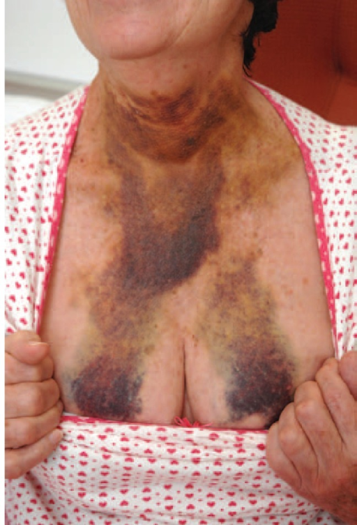 A photograph demonstrating the extent of bruising at presentation.