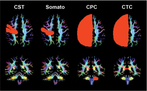 Region of interest (ROI) placement for representative somatosensory motor cortex tracts for a control participant (age 23): corticospinal (CST), somatosensory (Somato), cortico-ponto-cerebellar (CPC) and cerebellar-thalamo-cortical (CTC) tract ROIs in the cerebral cortex (first row) and cerebellar peduncles (second row). Coloration is based on the direction of water diffusion (Blue: ascending–descending diffusion; Red: left–right diffusion; Green: anterior–posterior diffusion).