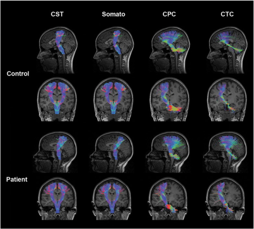 Somatosensory motor tracts in a representative control and ataxia telangiectasia (A–T) subject (age 23): control tracts are displayed in the first and second rows comprising the left sagittal (first row) tracts, left and right coronal (second row) corticospinal (CST) and somatosensory tracts, and left coronal (second row) cortico-ponto-cerebellar (CPC) and cerebellar-thalamo-cortical (CTC) tracts. Patient tracts are displayed in the third and fourth rows comprising the left sagittal (third row) tracts, left and right coronal (fourth row) CST and somatosensory tracts, and left coronal (fourth row) CPC and CTC tracts. Coloration of tracts is based on the direction of water diffusion (Blue: ascending–descending diffusion; Red: left–right diffusion; Green: anterior–posterior diffusion).