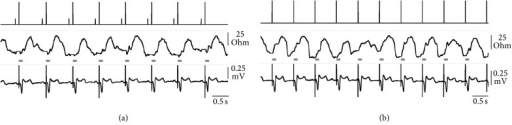 Real-time telemetry from the implanted pacemaker. Event markers (upper tracing; short bar = atrial sensing; long bar = ventricular pacing) and transvalvular impedance (TVI; middle tracing; recording in ventricular tip configuration) are matched with the surface ECG (lead II; lower tracing). The horizontal grey bars represent the TVI blanking period following the ventricular spike emission. Atrium-driven (a) and VVI stimulation (b) are compared in the same patient.