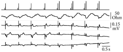 Real-time telemetry of event markers (1st tracing) and transvalvalvular impedance (2nd tracing) with simultaneous surface ECG recording (I, II, and aVR from the 3rd to bottom tracings, all with the same voltage scale) during ventricular threshold analysis in VDD. On the markers tracing, short bars represent atrial sensing, intermediate bars ventricular pacing, and the longest bars ventricular sensing in the pacemaker refractory period. From the 5th pulse onward the stimulation was below threshold and a narrow QRS replaced the pacing-evoked wide complex. Nevertheless, a properly timed TVI fluctuation was present, confirming the ejection occurrence, and the energy scan continued down to the minimum pulse amplitude available.