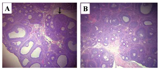 Representative histopathological pictures of ovary stained by H and E. (A) vehicle control group; (B) T-2 toxin treatment group. The arrow indicates the corpus luteum. Magnification ×40.