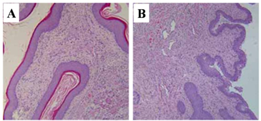 Representative histopathological pictures of vagina stained by H and E. (A) vehicle control group; (B) T-2 toxin treatment group. Magnification ×100.