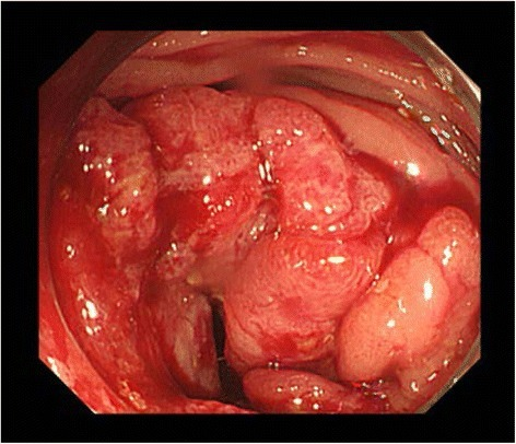 Colonoscopy showed a circumferential tumor in the transverse colon