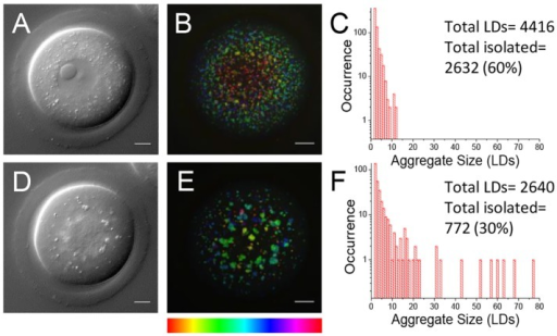 Cell viability after live imaging with CARS. (A,D) Single z-plane DIC using a 1.27 NA water objective and a 1.4 NA oil condenser and (B,E) depth colour-coded images of CARS stacks at wavenumber 2850 cm−1, of an egg before and after in vitro maturation, showing that development can still occur after live imaging with CARS (n=40). (C,F) Histograms of the number of LDs making up clusters in these cells, demonstrating the change in LD distribution over time. 0.1×0.1 µm xy pixel size; 0.5 µm z-step; 0.01 ms pixel dwell time; ∼13 mW (∼9 mW) pump (Stokes) power at the sample. Scale bars: 10 µm. Colour bar shows depth colour-coding from –25 µm-25 µm (0 µm being the equatorial plane). Data from >5 trials, using 1-3 mice each.