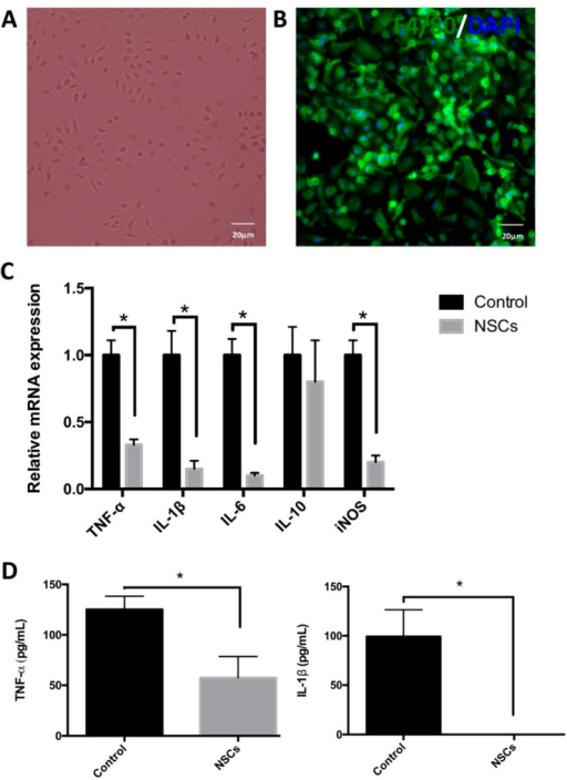 The effects of NSCs on the regulation of macrophage activation in vitro. (A,B) Mouse bone marrow-derived macrophages (BMDMs) were cultured in DMEM supplemented with 5% newborn calf serum and 15% L929 cell conditioned media for seven days in vitro. (A) A phase of the macrophage; (B) BMDMs expressed the macrophage marker F4/80 (green), and the nuclei were stained with DAPI (Blue); (C) BMDMs were cultured alone or co-cultured with NSCs by using transwells for 12 h, then incubated with 10 ng/mL IFN-γ for 12 h. Next, the mRNA levels of iNOS, TNF-α, IL-1β, IL-6 and IL-10 were detected by quantitative real-time PCR (n = 6). Results are displayed as the mean ± SD. * p < 0.05; (D) BMDMs were treated with or without NSCs for 24 h and then were induced by 10 ng/mL IFN-γ for 24 h. The BMDMs' supernatants were collected, and the production of TNF-α and IL-1β was examined by ELISA (n = 6). Data are represented as the mean ± standard error. * p < 0.05. Scale bar = 20 μm.