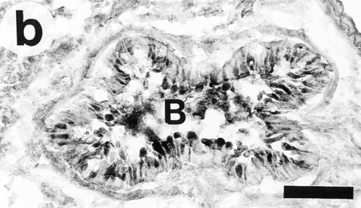 Light micrographs  of PAS-stained lung tissue cryosections obtained from immunized Ig-deficient mice 24 h  after last challenge with aerosolized SAL (a) or OVA (b). After saline challenge, there are no  PAS-positive cells in the airway  epithelium or PAS-positive material in the bronchial lumen. In  contrast, after ovalbumin challenge  there are numerous PAS-positive  cells in the airway epithelium and  PAS-positive material is present in  the bronchial lumen. B, bronchus.  Bar, 100 μm.